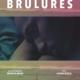 Brûlures_Jeremy Giroux_Barney Production